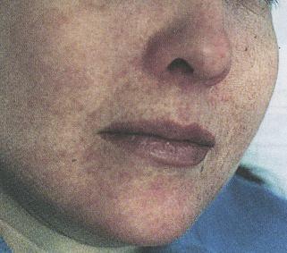 внешний вид больного демодекозом
